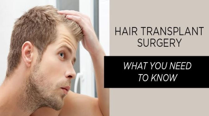 Loosing Hair ? Know about Hair Transplant!