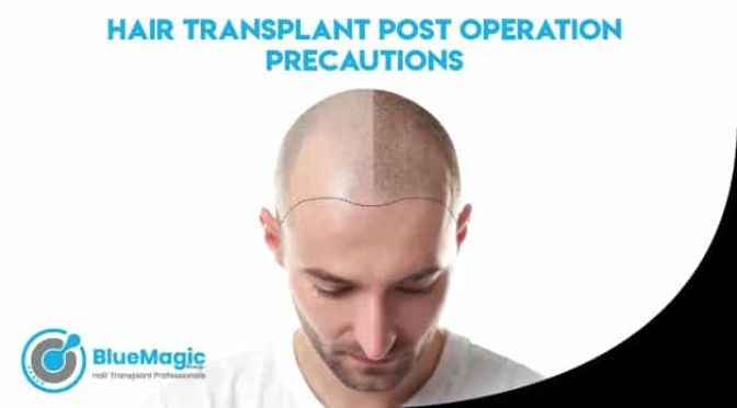 Hair Transplant: Post Operation Precautions