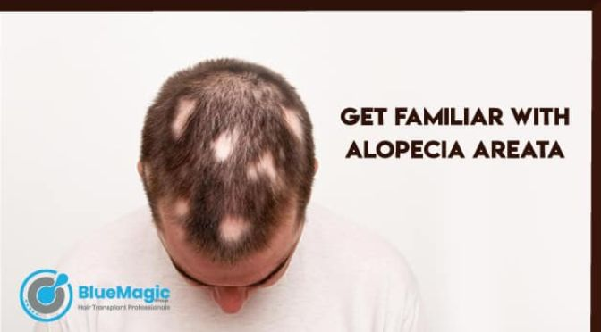 Get Familiar with Alopecia Areata