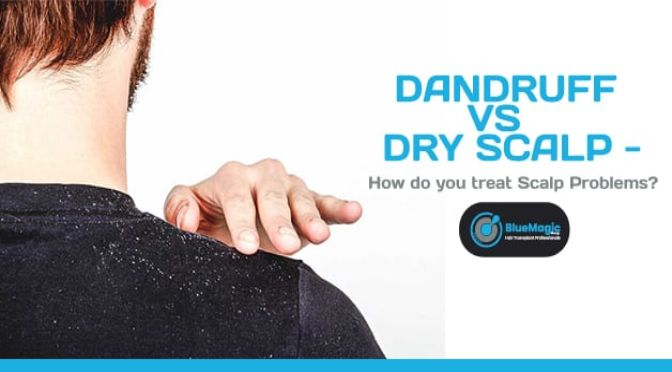 Dandruff vs Dry Scalp – How do you treat Scalp Problems?