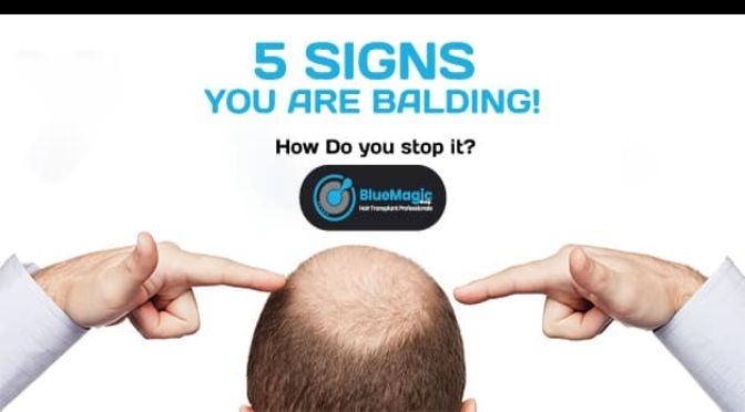 5 Signs you are Balding! How Do you stop it?