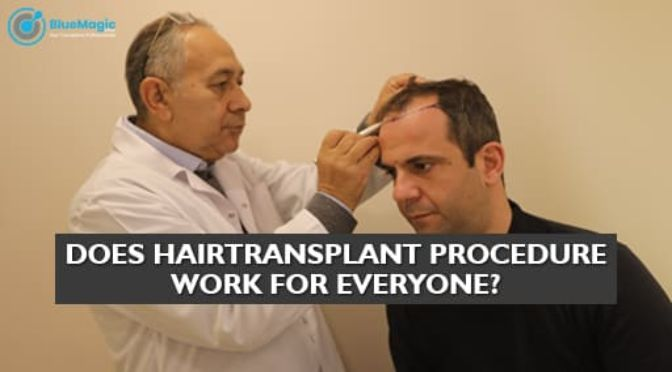 Does hair transplant procedure work for everyone?