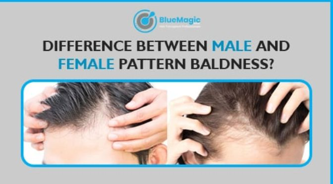 Difference between male and female pattern baldness