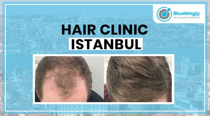 Best Hair Clinic in Istanbul