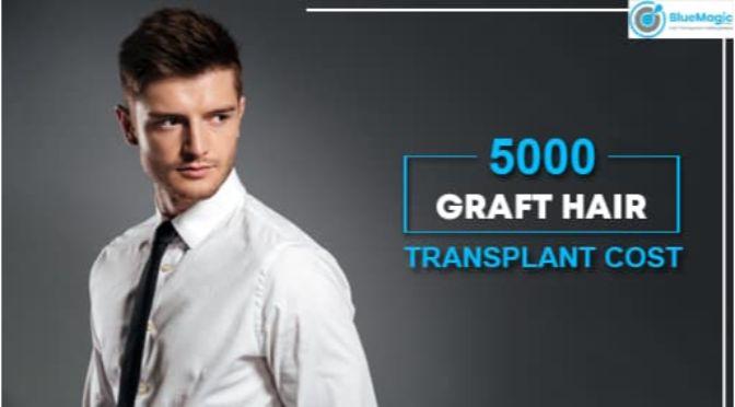 5000 graft hair transplant cost