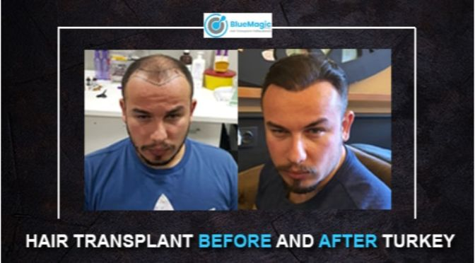 Hair Transplant Before and After Turkey