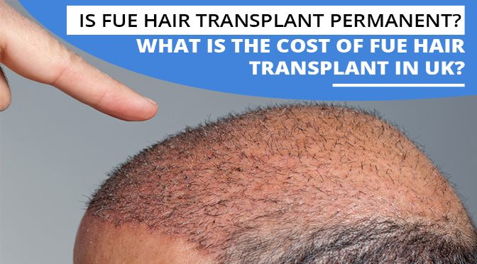 Is FUE hair transplant permanent? What is the Cost of FUE hair transplant in UK?